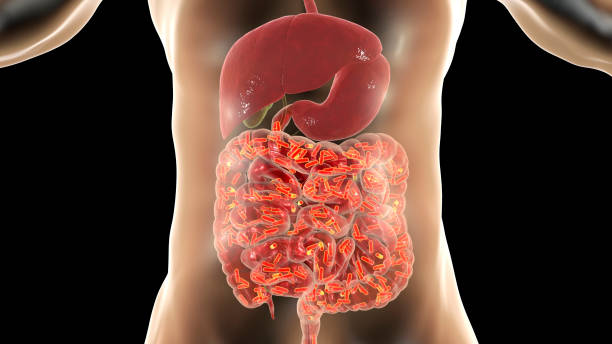 How to Clean Your Bowels Naturally