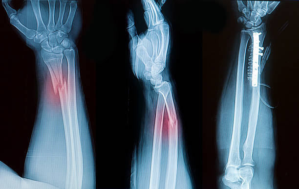 Distal Radius Fracture Complications and Increasing Bone Strength