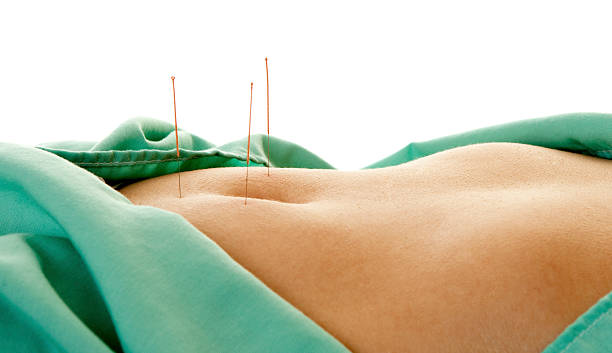 acupunture and ivf for fertility