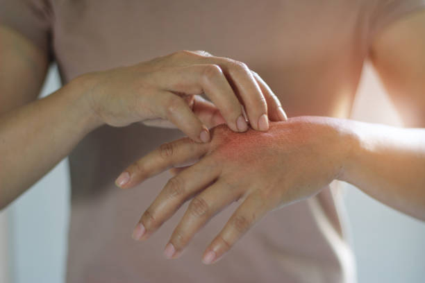 Systemic Nickel Allergy Syndrome
