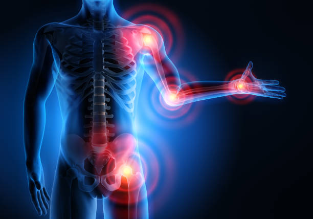 Joint inflammation treatment